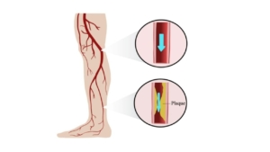 graphic depicting leg arteries being clogged causing peripheral artery disease